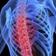 Você sabia que: A maioria das fraturas são complicações de baixa massa óssea ou osteoporose. Muitos casos de dor nas costas têm como causa uma fratura vertebral por achatamento, que pode ser subdiagnosticada ou mesmo ignorada. A osteoporose é […]
